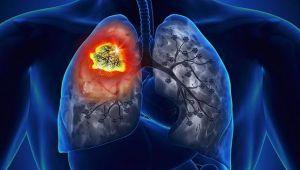 Akciğer kanseri önlenebilir