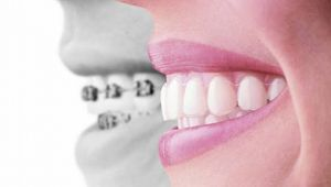 Diş dizilimi bozukluklarından kurtulmak çok kolay